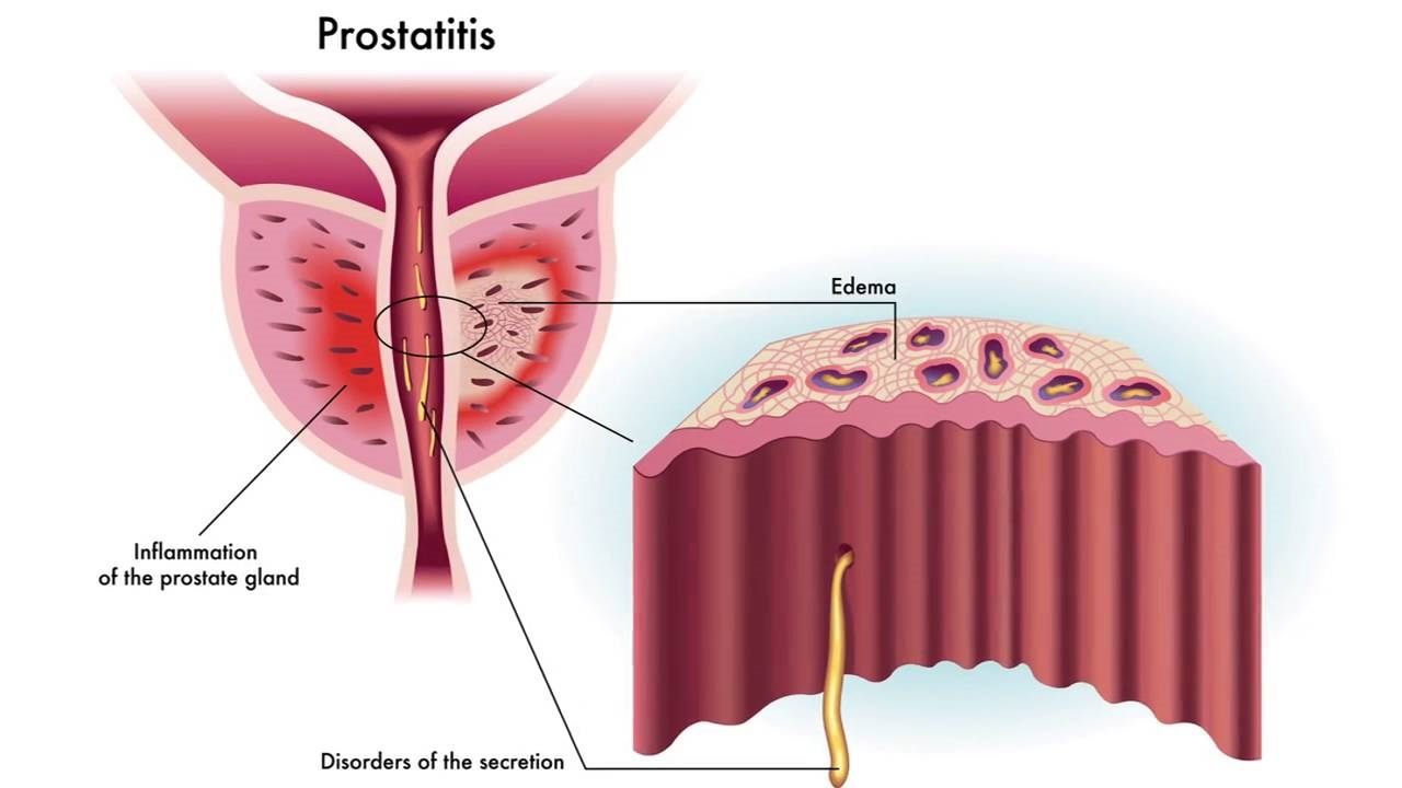 prostat iltihabı belirtileri neden olur